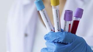 Sağlık Bakanlığı açıkladı! Koronavirüse karşı yeni tedbirler